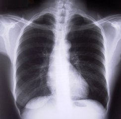 Pulmonolog – specjalista w zakresie leczenia chorób płuc